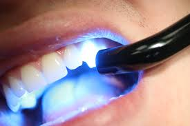 trends in cosmetic dentistry 1