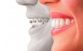 trends in cosmetic dentistry 3